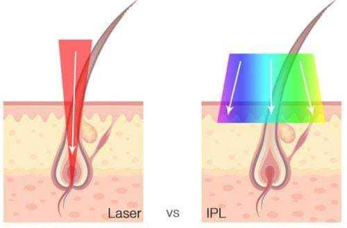 wynajem lasera light sheer ipl